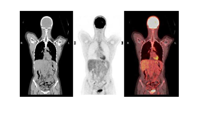 PET Scan in GI Malignancy